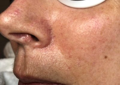 Photo 2: Six weeks later, post one treatment. See how the spider veins on her lower cheek have reduced. The spider vein closest to her nose is currently being treated.