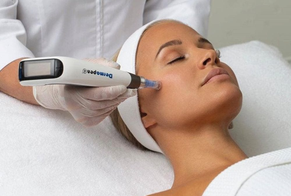 We have dermapen now for microneedling